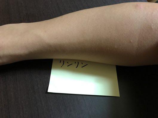 脱毛後の腕の画像
