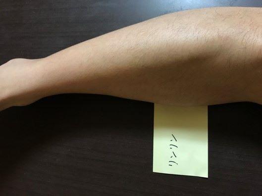 脱毛後足の画像
